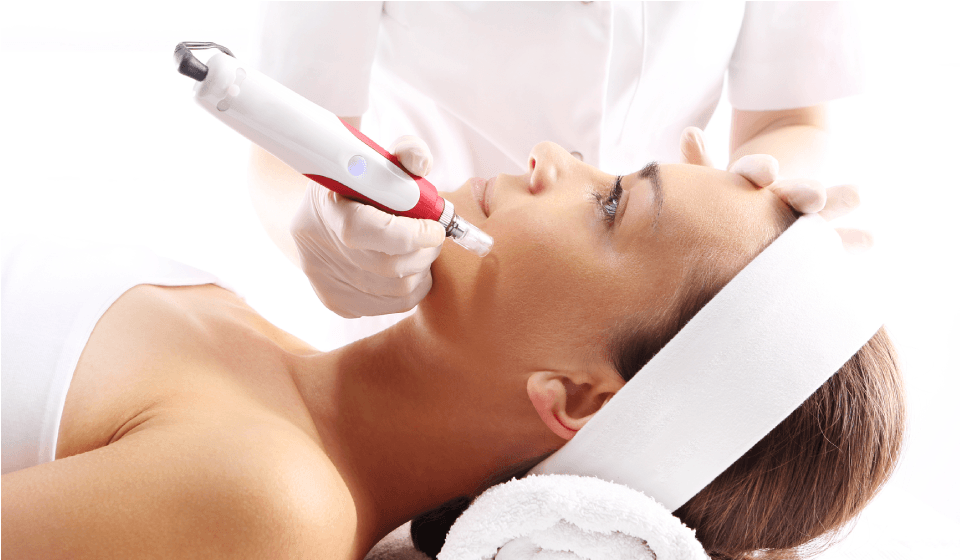 Microneedling with Platelet Rich Plasma (PRP) - Concordia Star Med Aesthetics